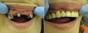 Протезирование зубов на дому у пациента